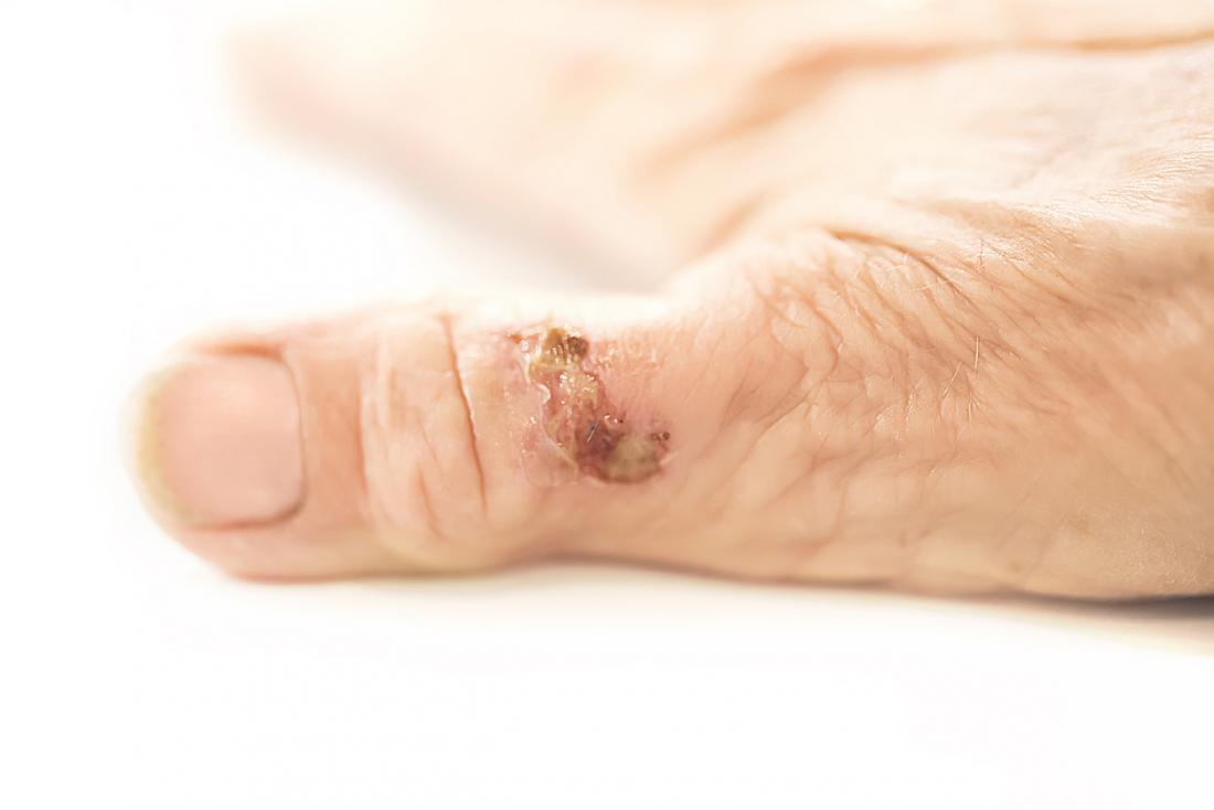 Trauma in der Nähe eines Druckpunktes kann rheumatoide Knötchen entwickeln