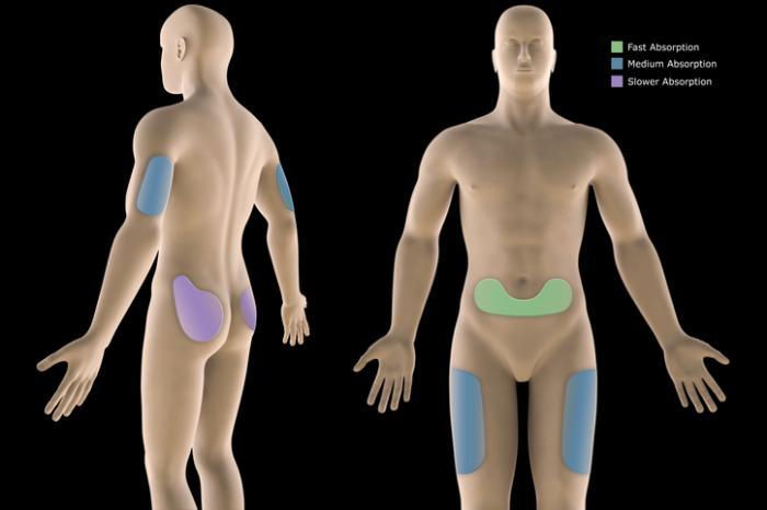 [insülin enjeksiyonları için vücut üzerindeki yerlerin şeması]