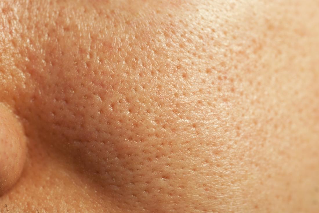 Gros plan des grands pores sur le visage et comment se débarrasser des gros pores