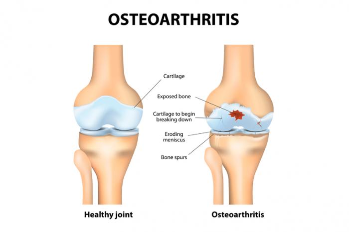 comparaison de l'articulation saine et de l'articulation avec l'arthrose