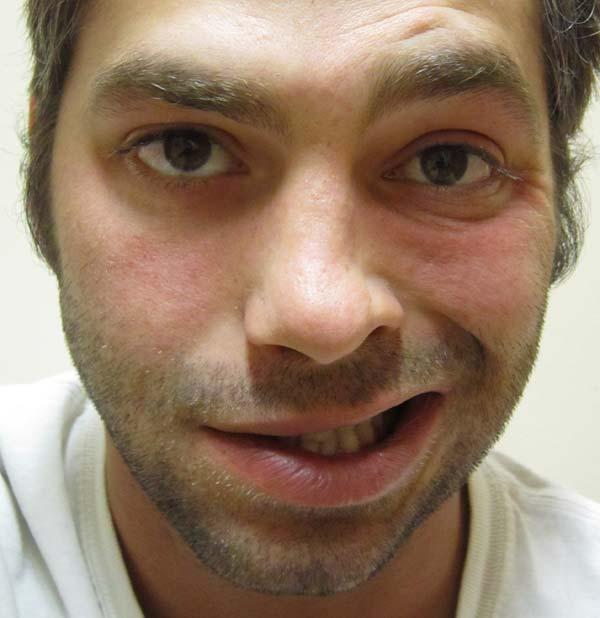 Một bệnh nhân bị bại liệt ở phía bên trái