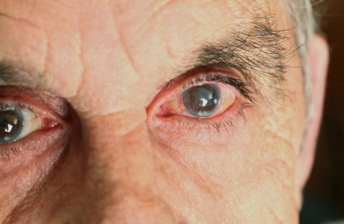 Olho vermelho do glaucoma