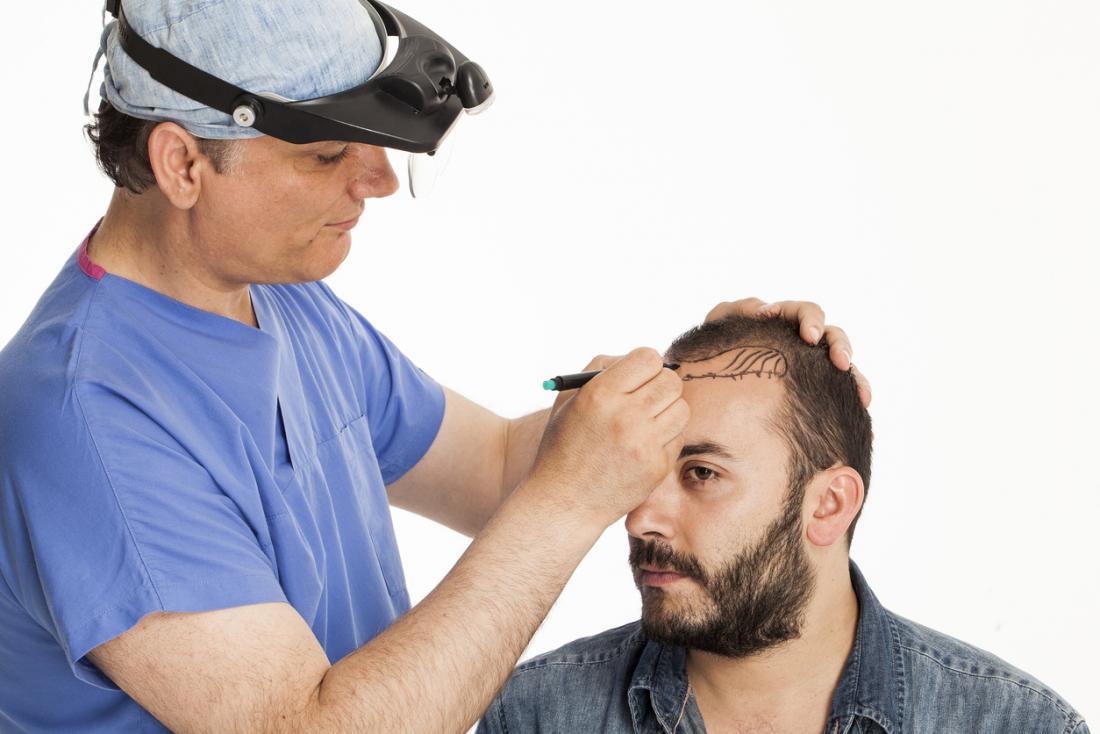 Cirurgião cosmético que marca a cabeça do paciente masculino para a cirurgia de transplantação do cabelo.