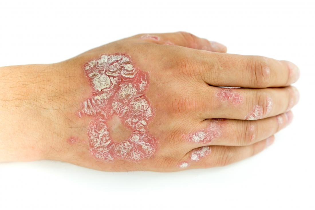 Psoriasis au dos de la main.