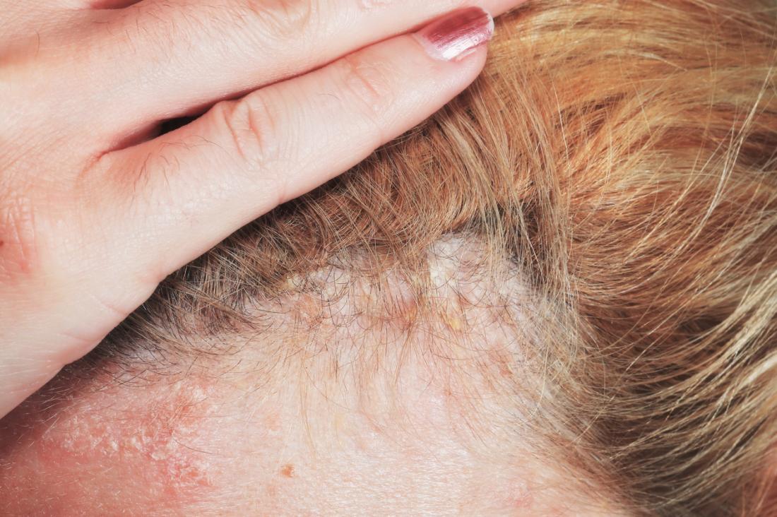 Le psoriasis du cuir chevelu sous les cheveux.