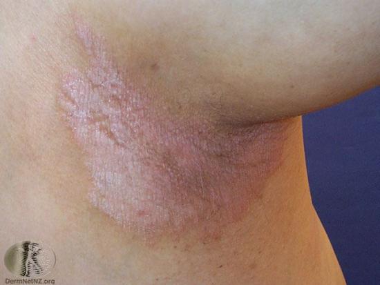 Psoriasis inversé sur la peau du cou.