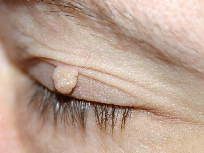 Ein weiches Fibrom des Augenlids