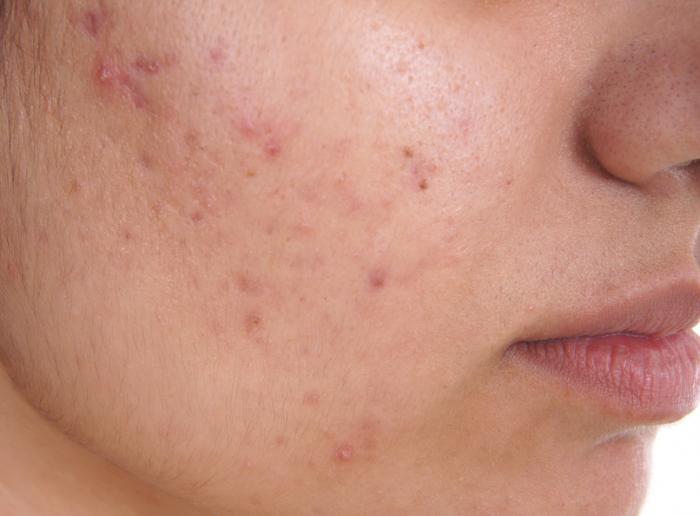 un gros plan de l'acné sur une personne droite joue
