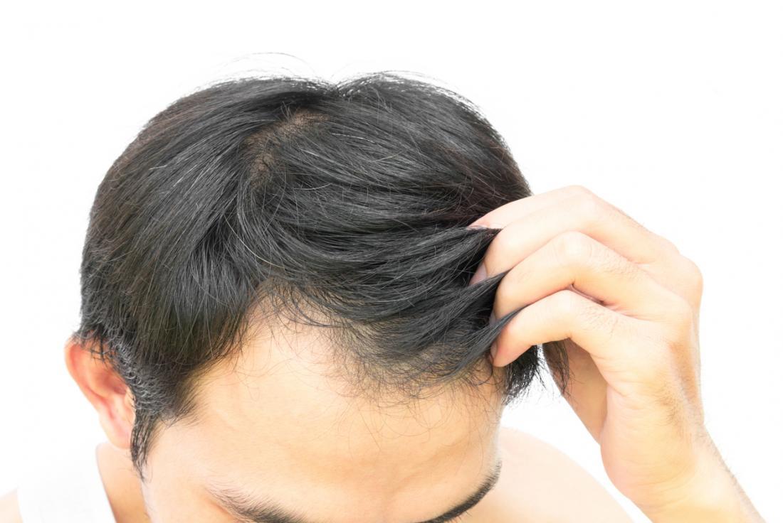 Homem tocando seu cabelo.