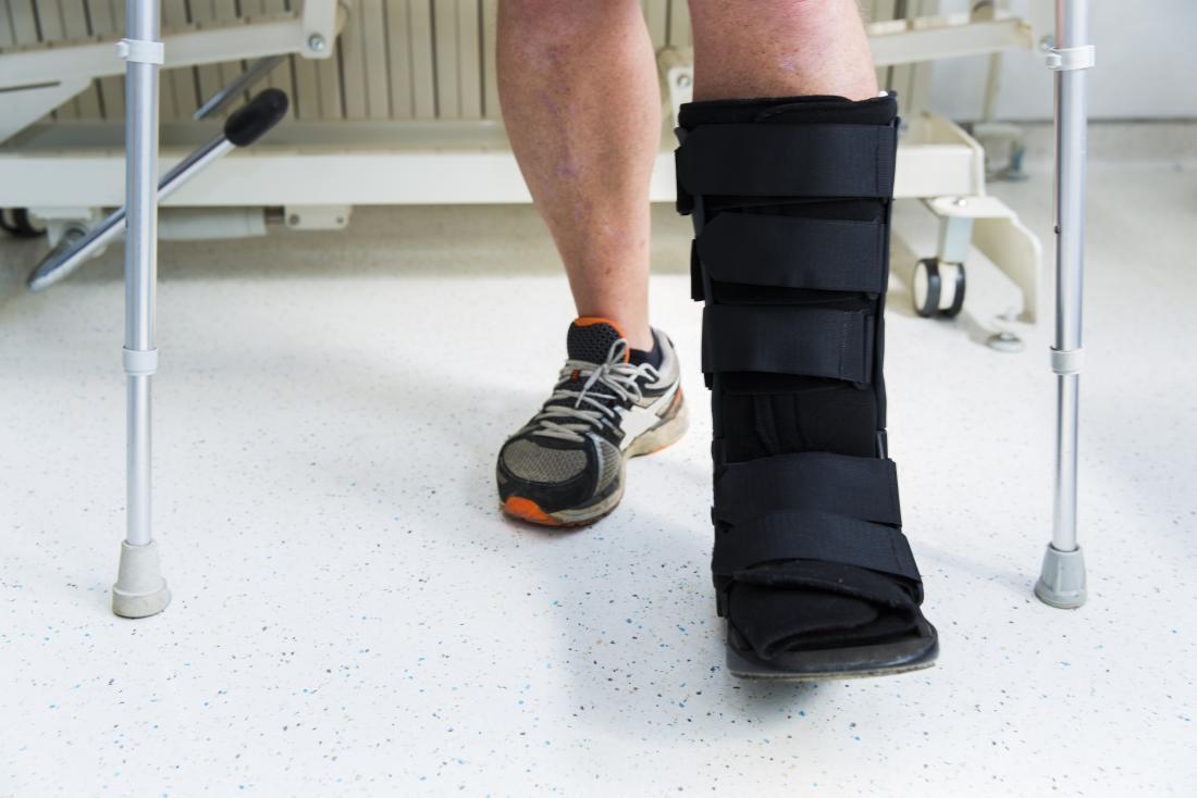 Une botte protectrice pour un pied cassé