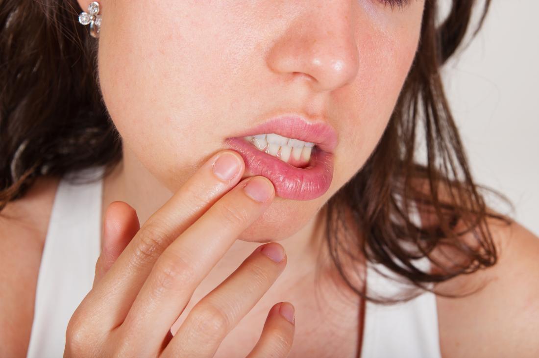 Donna con un'allergia agli agrumi che tiene la bocca