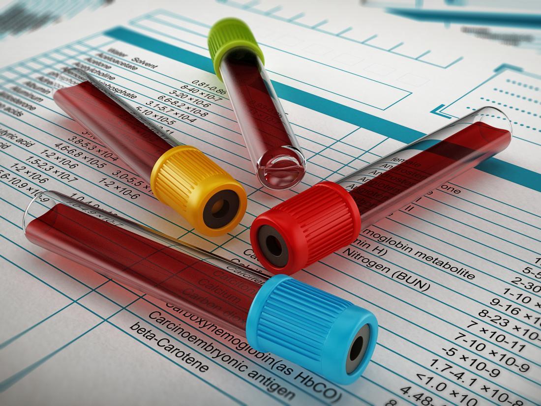 analisi del sangue e foglio di analisi
