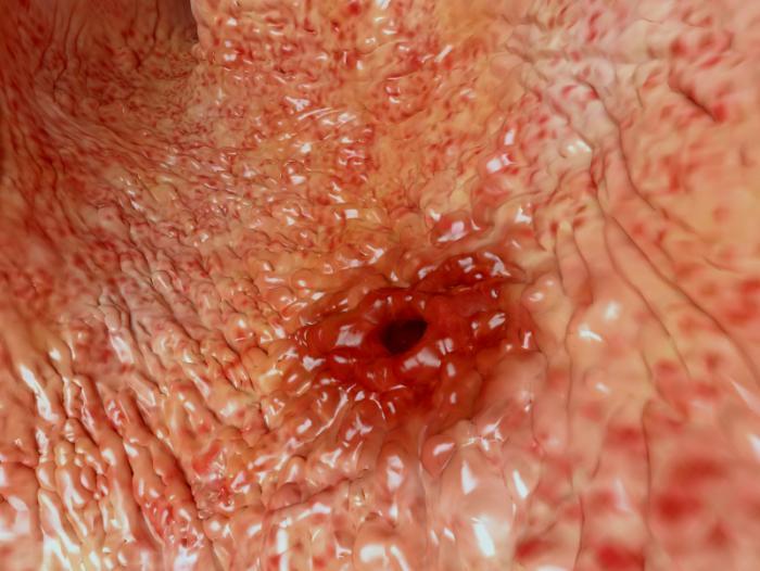 Uma úlcera péptica.