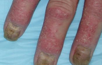[乾癬性関節炎に罹患した爪]