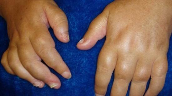[腫れた指の乾癬性関節炎]