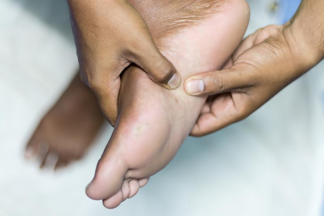 Person, die ihren Fuß wegen plantar Fibroma hält