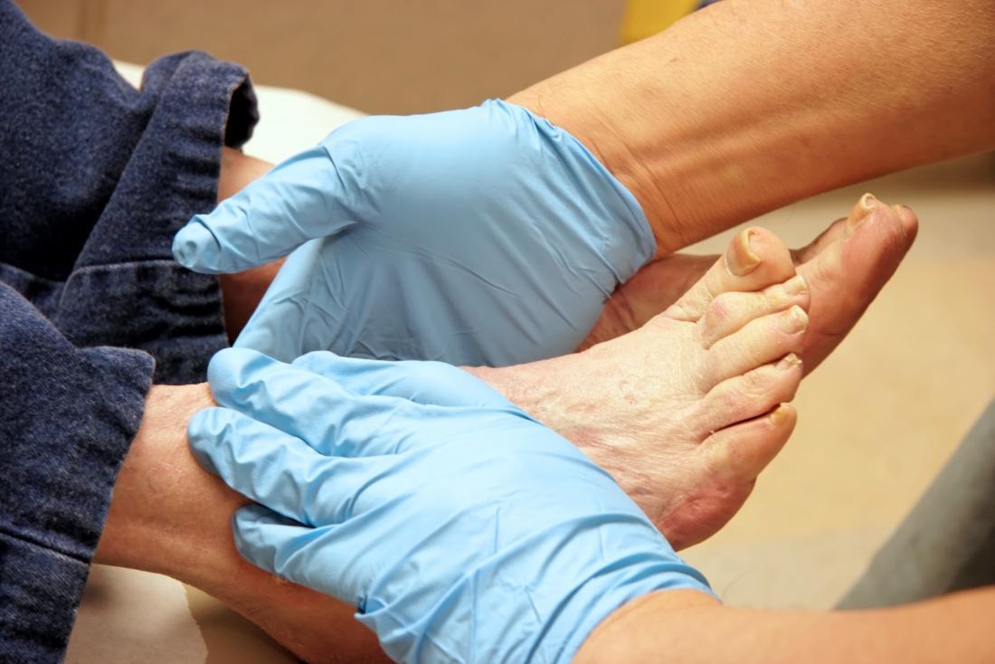 Doktor, der Füße eines Patienten für plantar Fibrom überprüft