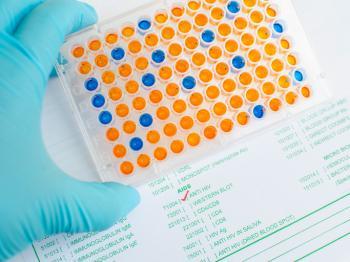 HIVに対するELISA試験