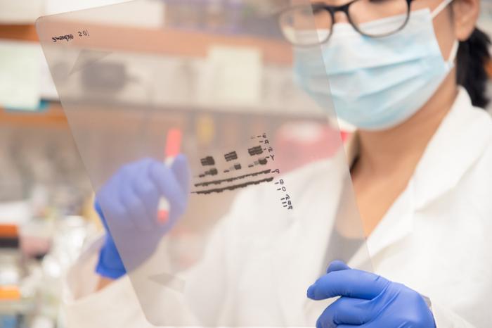HIVのウエスタンブロット検査