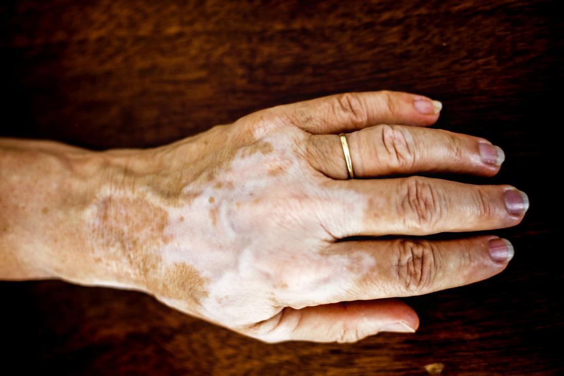 Vitiligo em uma mão esquerda de senhoras