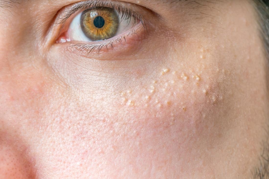 Milia provocando protuberanze bianche sulla pelle.