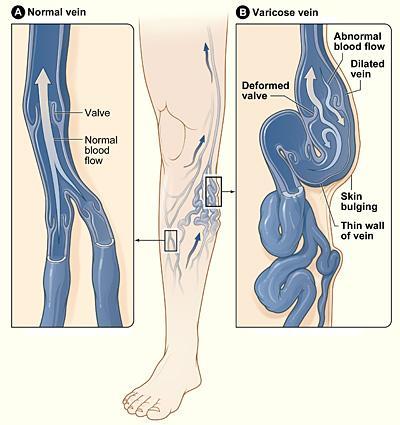 Diagramma delle vene varicose