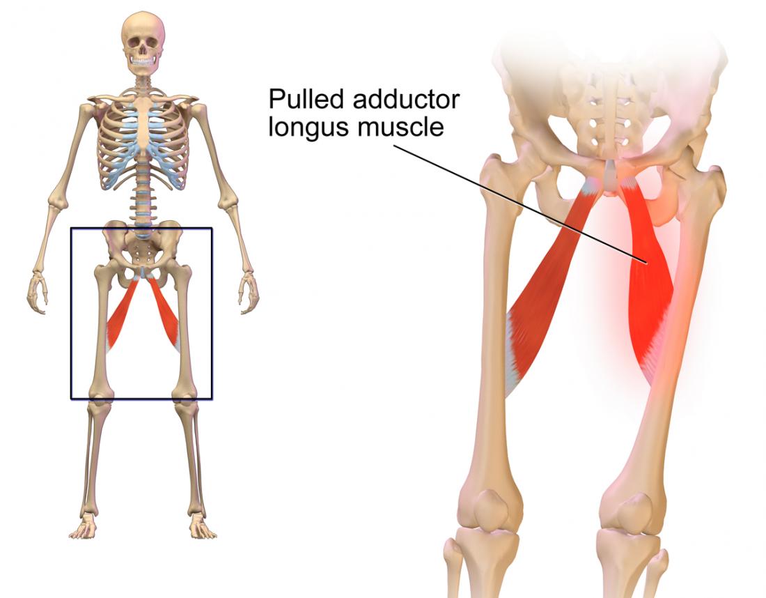 Anatomie du muscle de l'aine tirée. Crédit d'image: BruceBlaus, (2015, 10 novembre)