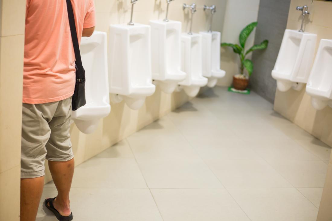 Mann mit einem Urinal mit möglichem Schleim im Urin