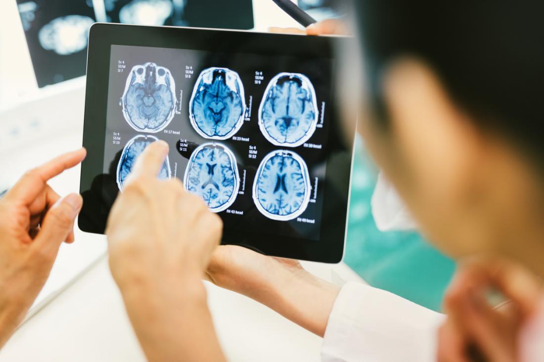 Das Auffinden der Ursache eines Hirnabszesses wird zu einer effektiveren Behandlung führen.