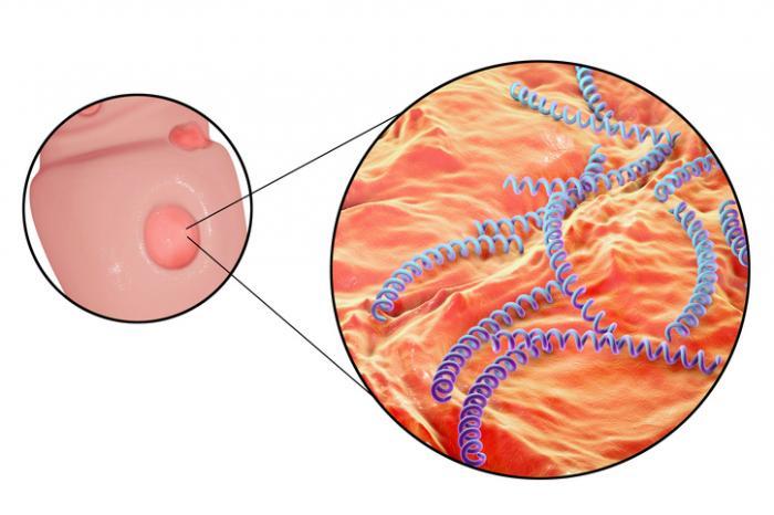 [Ulcère syphilitique et bactérie Treponema pallidum]