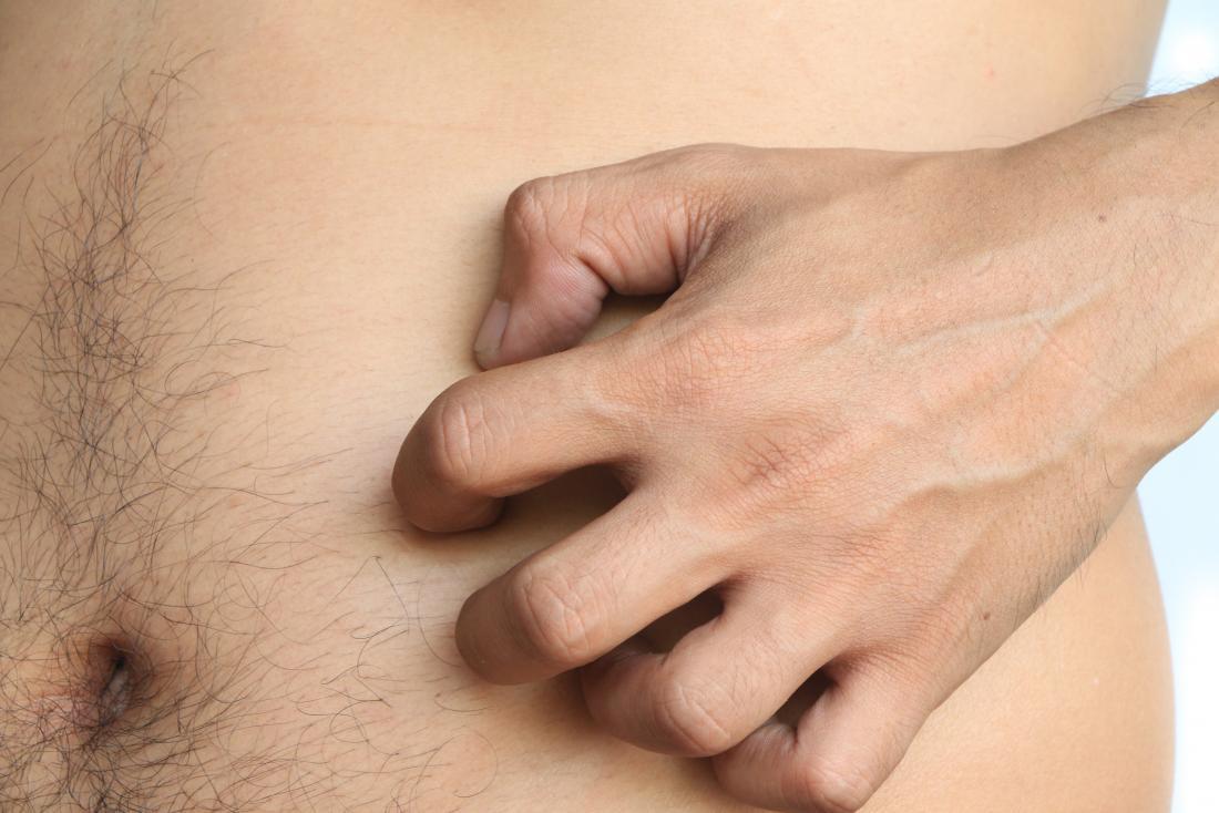 Човек със сърбящ стомах, който почесва корема си.