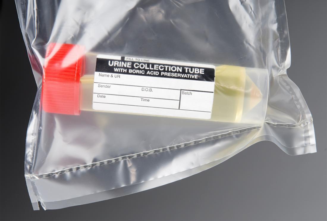 campione di urina