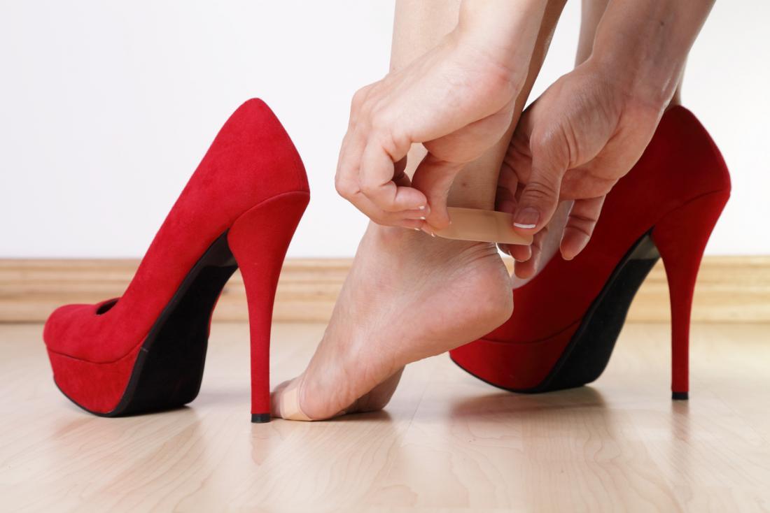 ampoule sur le talon d'une dame portant des chaussures à talons hauts