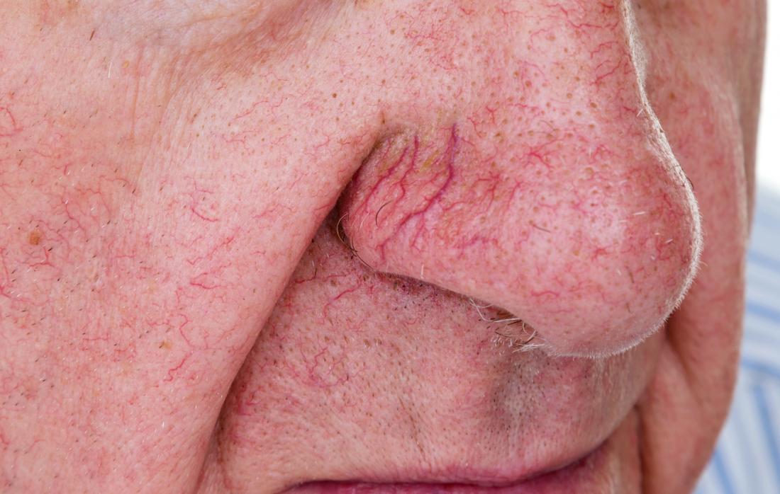 I vasi sanguigni rotti o le vene varicose sul naso di un uomo anziano.
