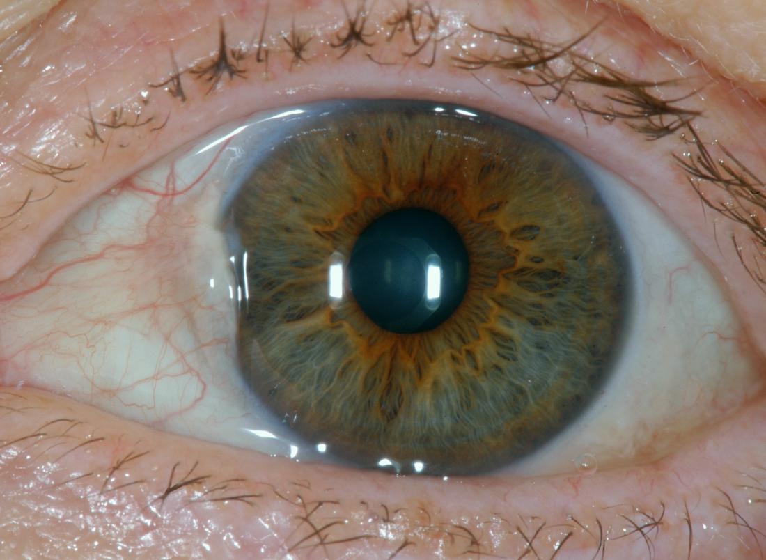 翼状片は眼球の隆起の原因であるbr image credit sciencia58 2017