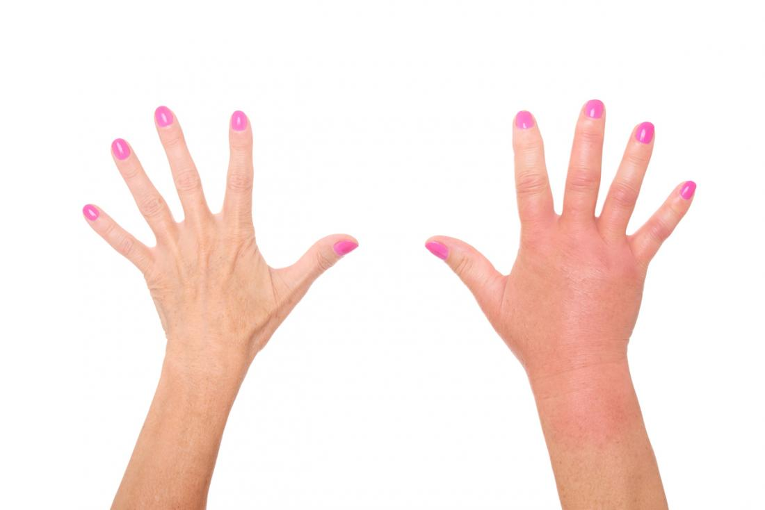 Reakcja alergiczna w dłoniach, powodująca zaczerwienienie i obrzęk.