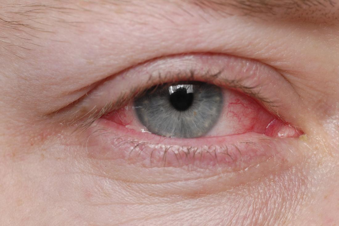 ピンクの目。