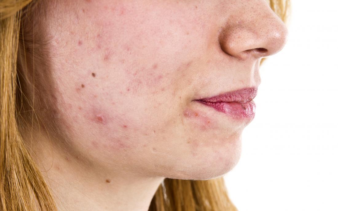 acne no rosto de uma mulher que pode indicar alta testosterona em mulheres