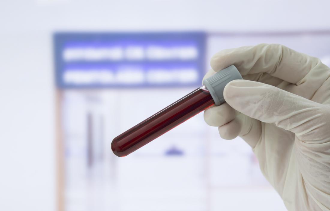 mão enluvada segurando uma amostra de sangue
