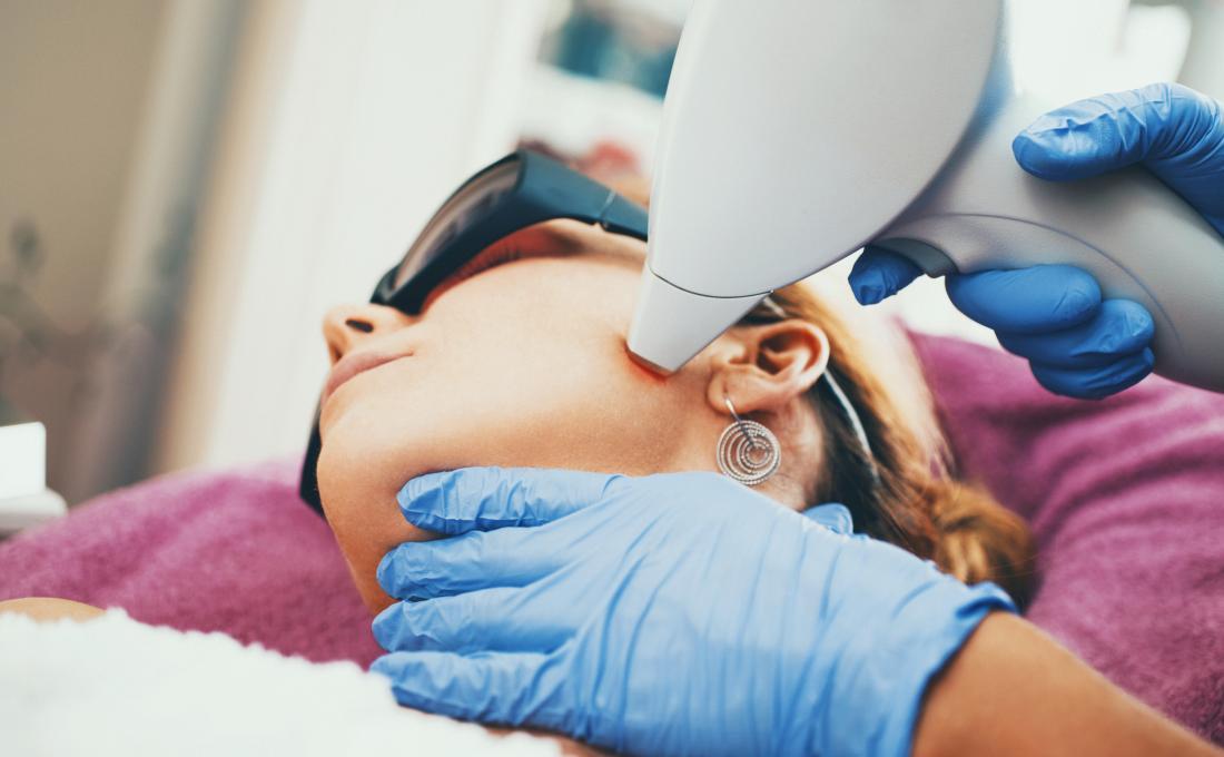 Depilação a laser pode ajudar a aumentar a testosterona em mulheres