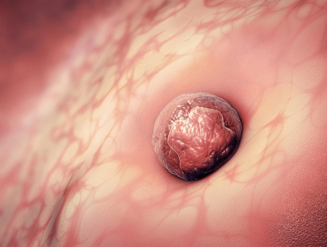 Was Verursacht Eine Implantationsblutung - Demedbook-3386