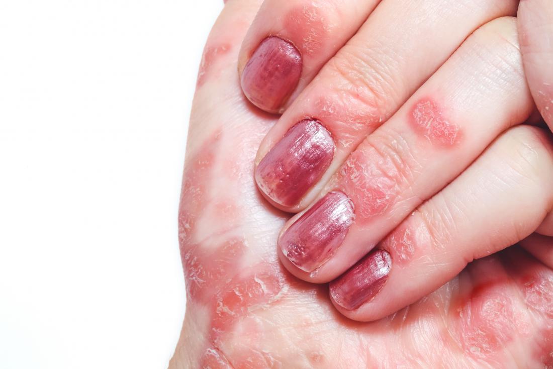 Psoriasis sur les doigts et les mains.
