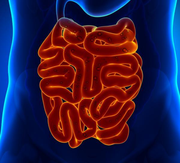 Imagem do intestino delgado.