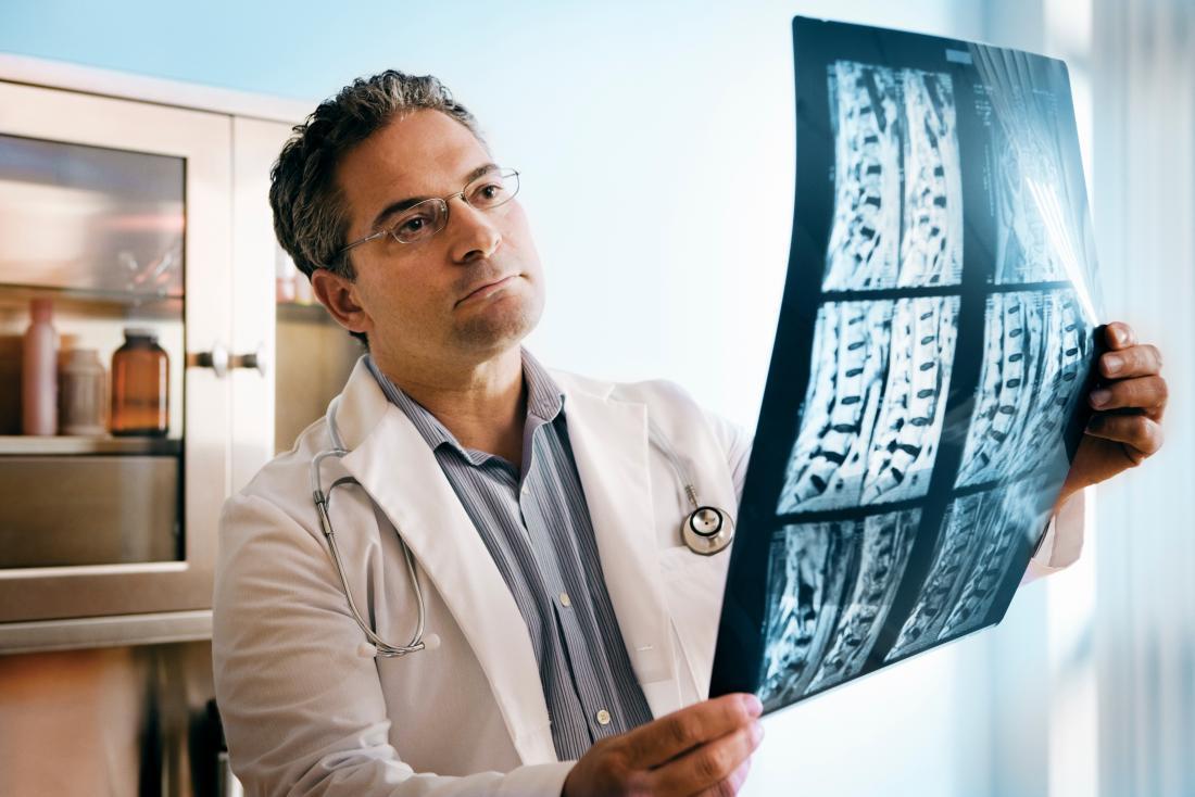 Doutor que examina a ressonância magnética e as varreduras do raio X da espinha.