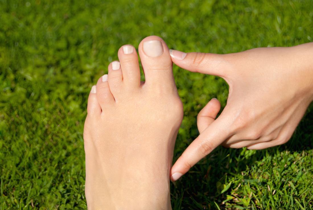 Person, die Bunion auf Seite des Fußes draußen vor Gras unterstreicht.