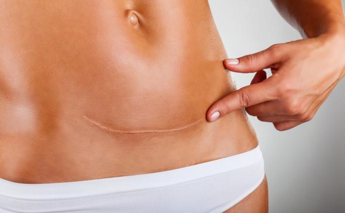 Une femme pointe vers une cicatrice césarienne.