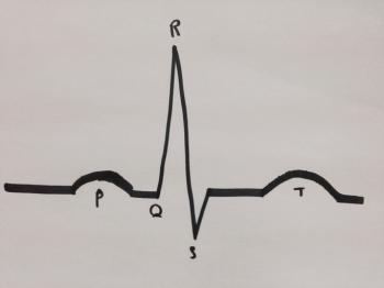 [EKG zeigt verschiedene Wellen]