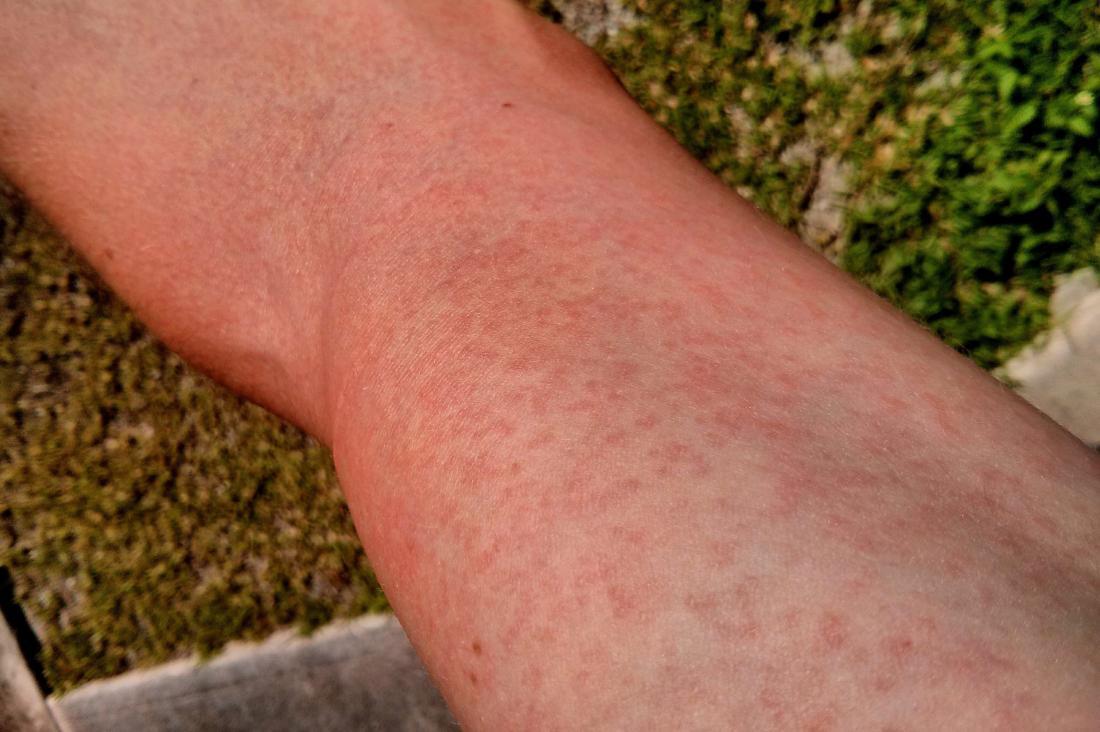 Virus Zika Éruptions macupapulaires. Crédit d'image: FRED, (2014, 10 janvier).