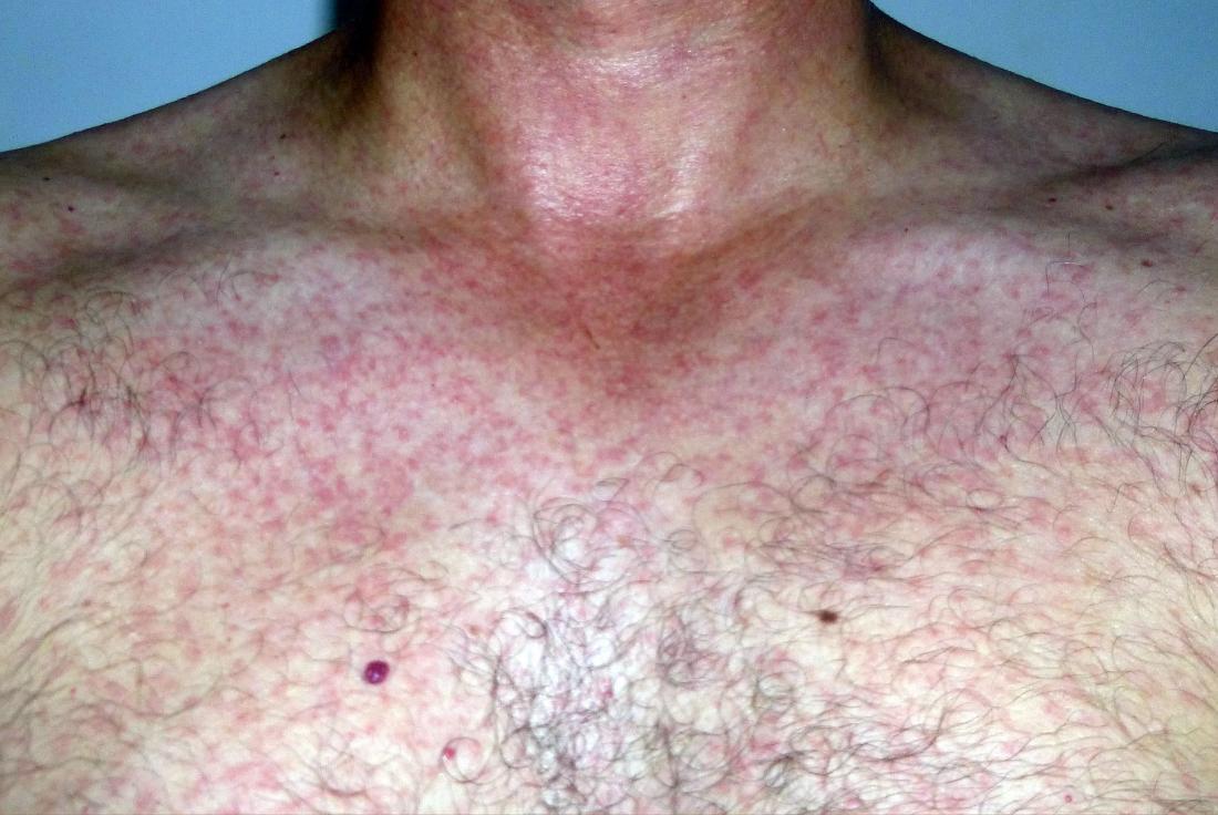 ジーファウイルスの斑点状発疹。画像クレジット:Cramunhao、(2015年、4月1日)。