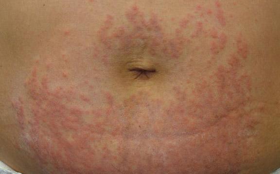 Éruption maculopapulaire. Papules urticariennes prurigineuses et plaques de grossesse.